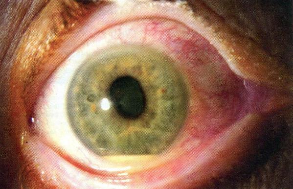 Fungal Endophthalmitis